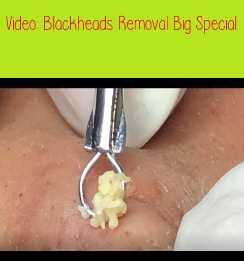 youtube videos of blackheads in ears