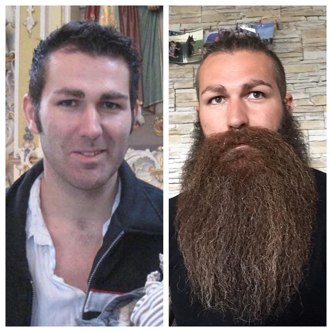 Minoxidil Bart vor und nach Gewichtsverlust
