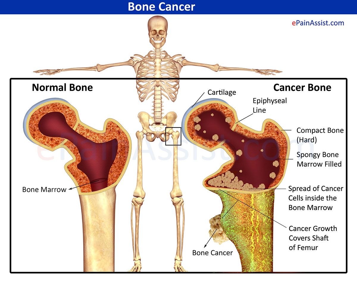 Image result for CANCEROUS BONE PICTURES IMAGES