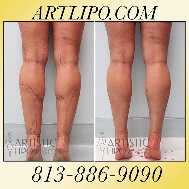 Cankles, #Ankles, #Calves, and #Knees are areas that many