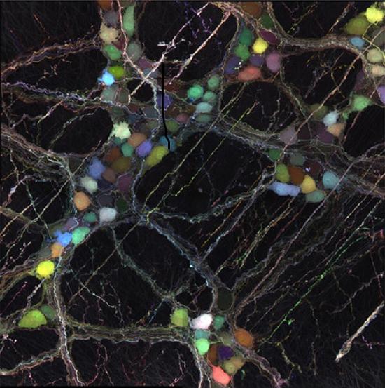 Novel Viral Vectors Deliver Useful Cargo To Neurons
