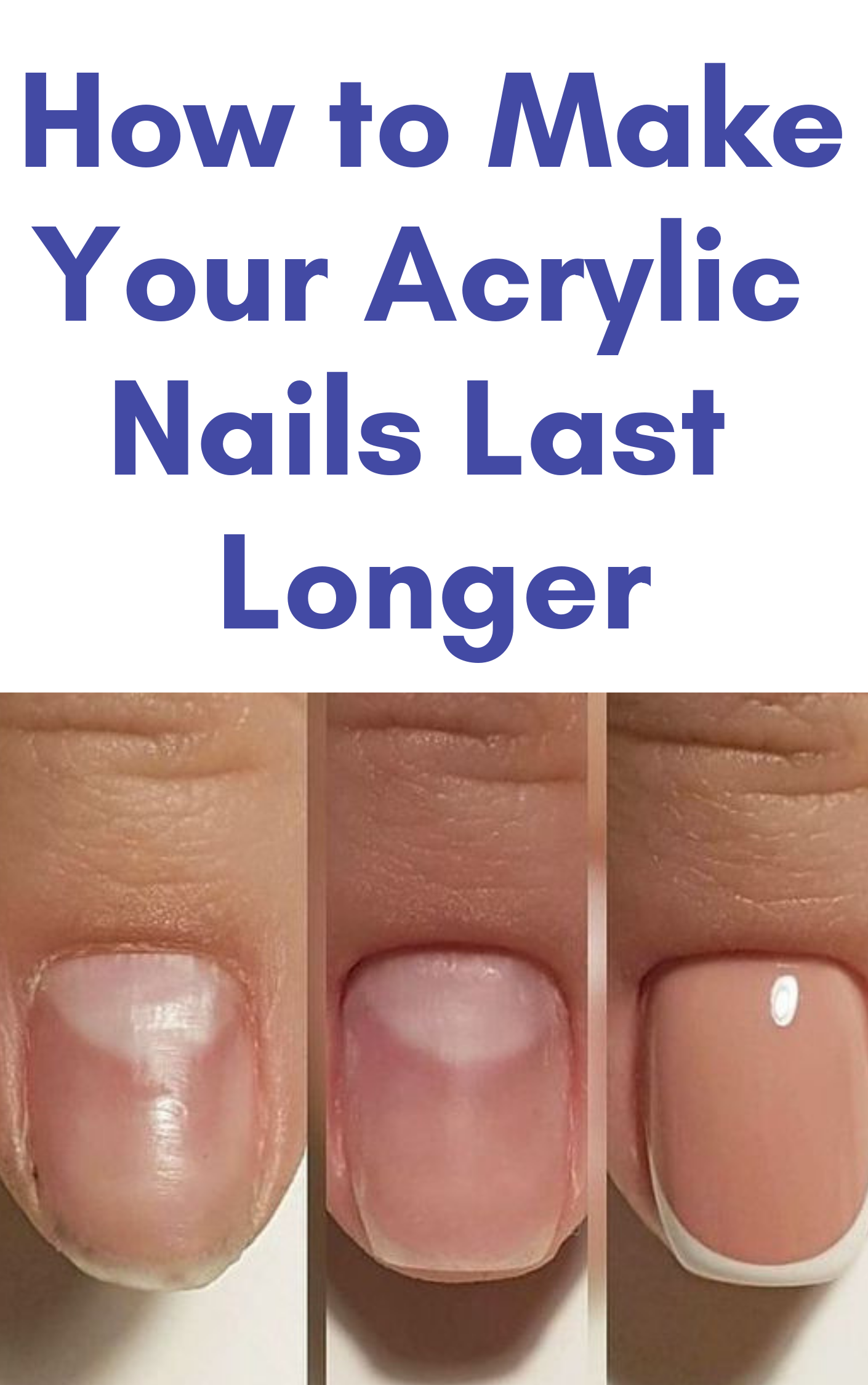 How Long Do Acrylic Nails Last And 14 Tips To Make Them Last Longer Nails Acrylic Nails Types Of Nails