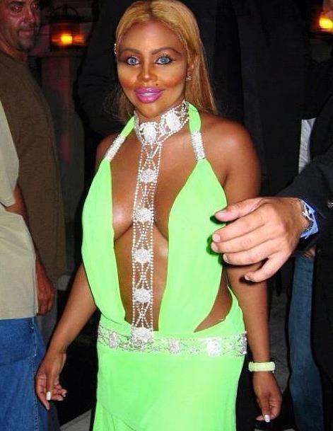 Lil Kim Looks Horrible Snapshot Lil Kim S New Look Just Too Much Plastic Outfits Lil Kim Yellow Mini Dress