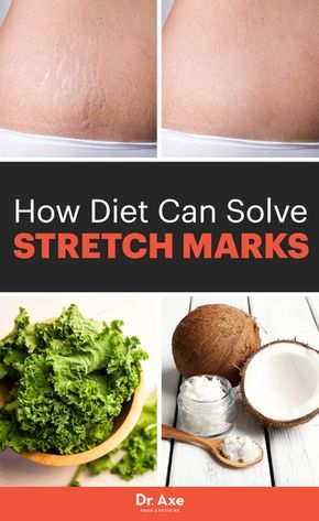 5 natural ways to treat stretch marks.