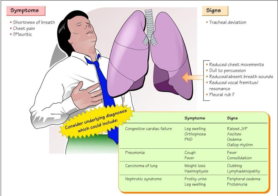 Pleural Effusion Respiratory Nursing School Nurse
