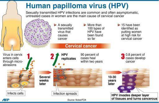 HPV cervical cancer diagram | Infections! | Pinterest