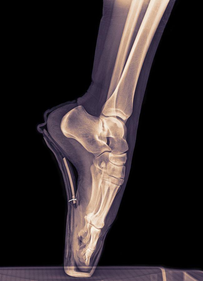 Así se ve con Rayos X el pie de una bailarina de ballet ...
