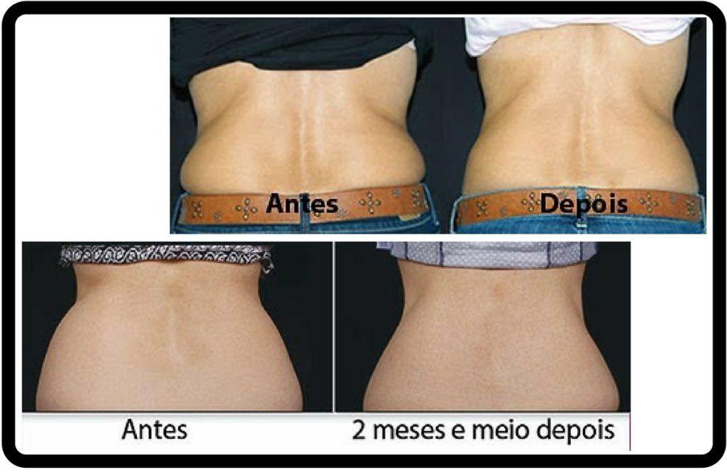 Top Antes e Depois de Flancos com a Criolipólise. Resultados em 2  SP25