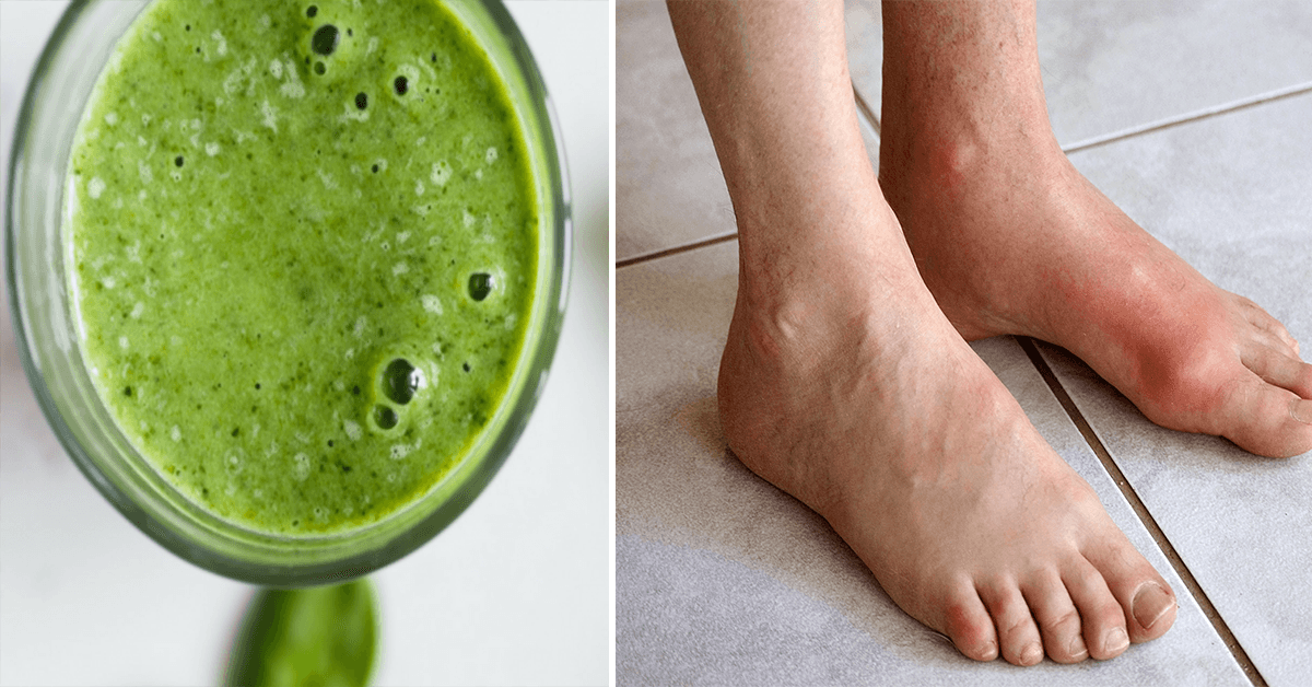 How to Remove Uric Acid Crystallization in Joints for Gout and Joint Pain