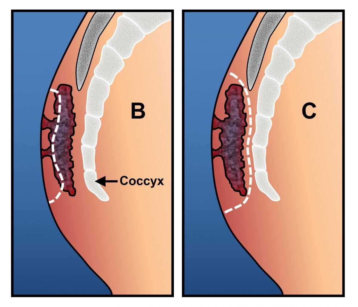Cyst Treatment, Types, Removal, Symptoms