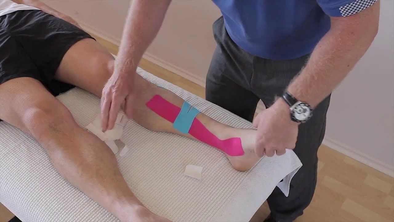 how to tape shin splints posterior
