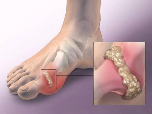 láb ízületi gyulladás kezelése