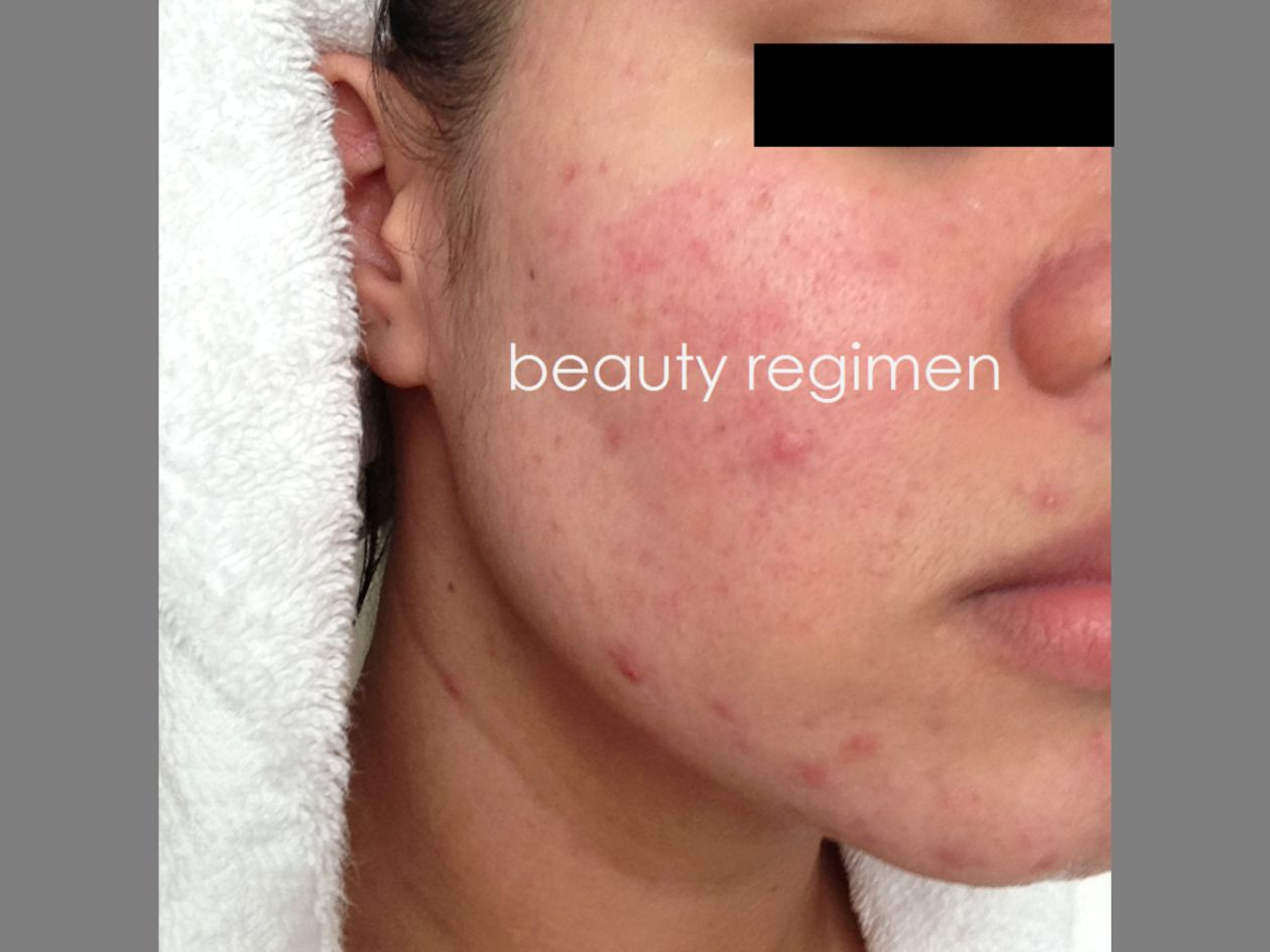 Acne Scar Removal  Acne and Inflammation  Want to know more