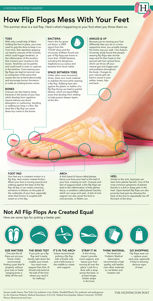 9a1ea7076765 Do YOU wear flip flops  They may be killing your feet. How Your Flip Flops  Are Killing Your Feet