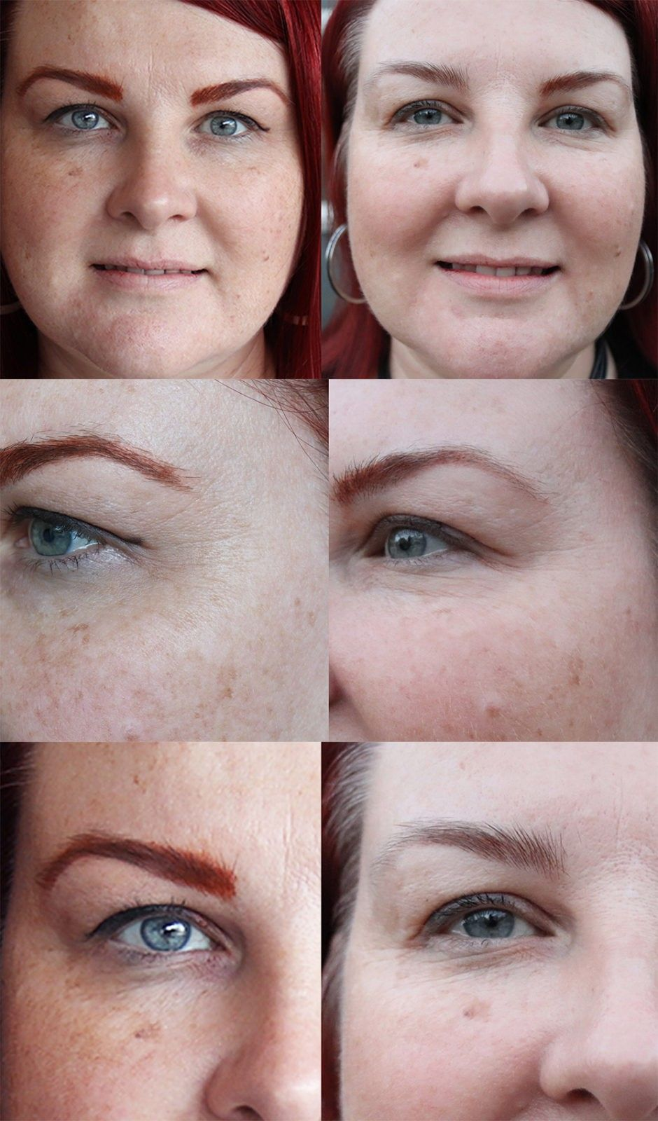 Sharon's Story: I Got Ultra Fractional Laser Right Before My