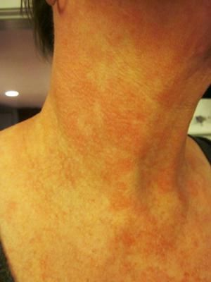 Skin Rashes in Children on Face in Adults on Hands on Arms