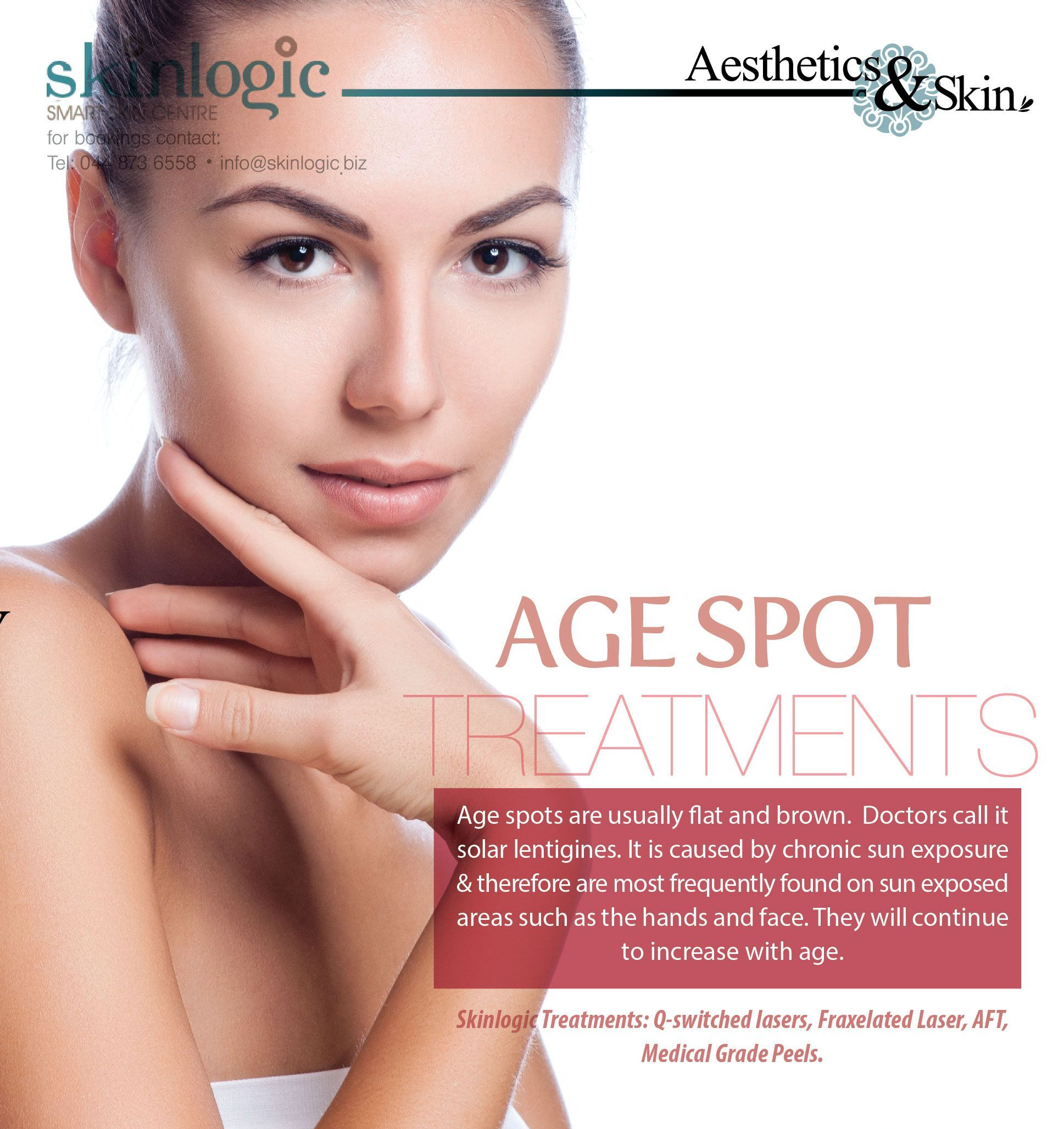 Age Spot Treatments Age Spots Are Usually Flat And Brown Doctors