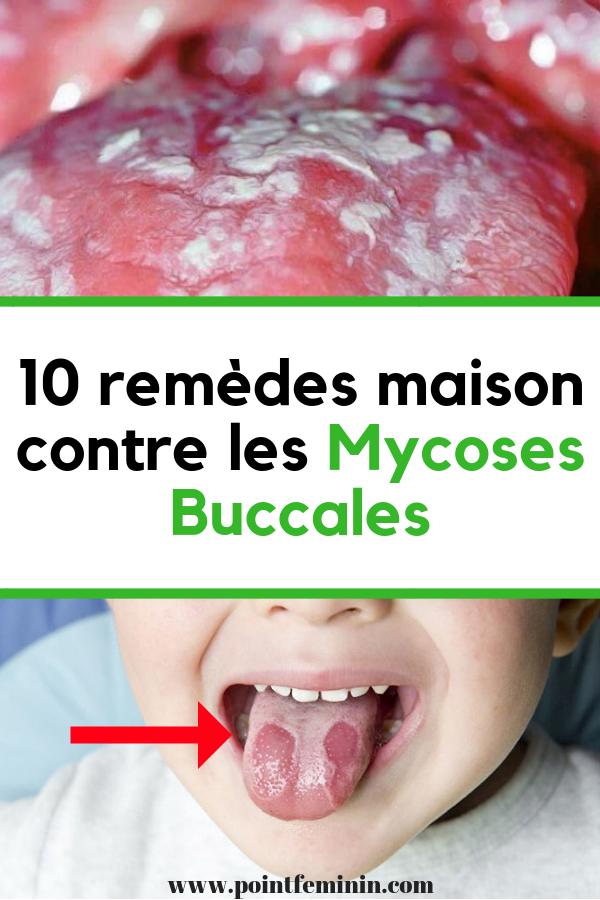 soigner mycose bouche naturellement