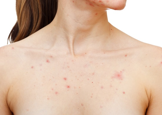 a71fc9e37a25cfb80fcb7360ed38a7bc - How To Get Rid Of Chest Acne And Scars