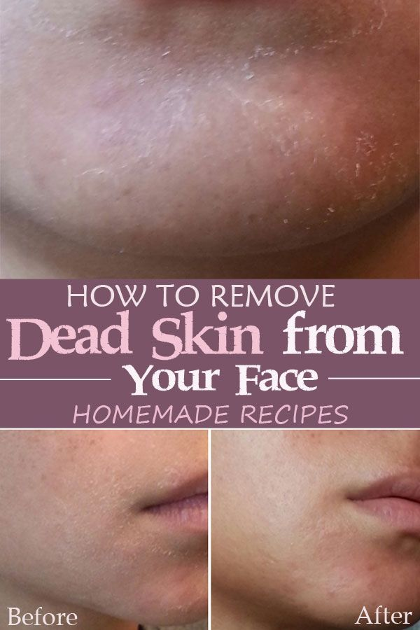 how to get rid of face peeling