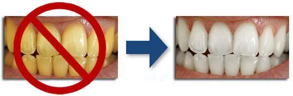 learn language fast: Teeth Whitening 4 You