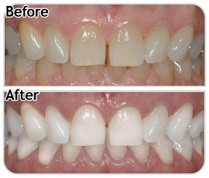 White Your Teeth At Home Como Blanquear Los Dientes Limpiar Dientes Blanqueamiento Dental