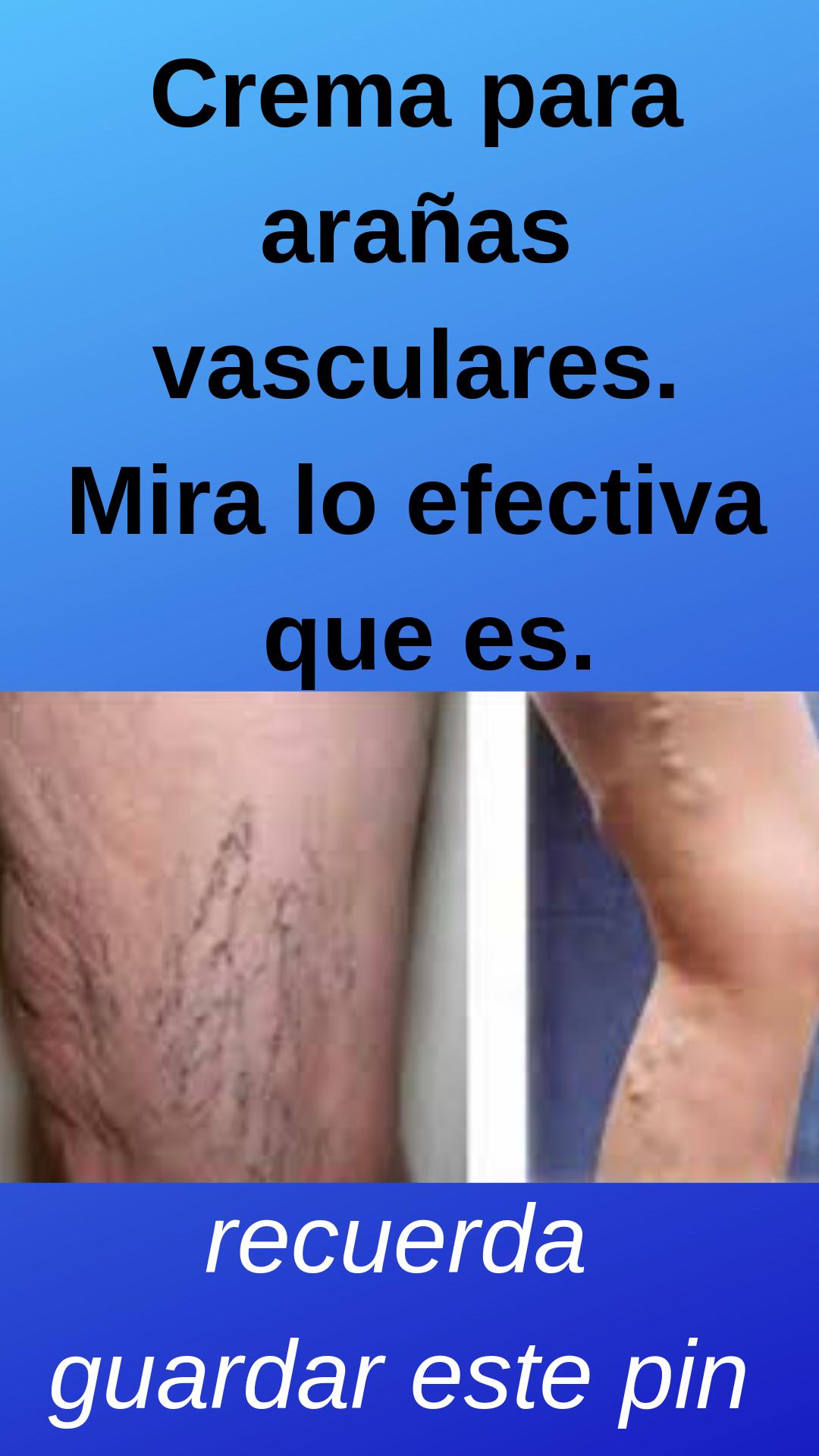 Crema Para Prevenir Las Varices Pin De Edith Maria Iriarte En Salud Salud Consejos Para La