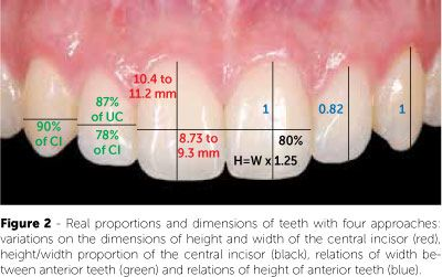 Pin by nokia 2017 on Human Anatomy | Pinterest | Orthodontics and ...