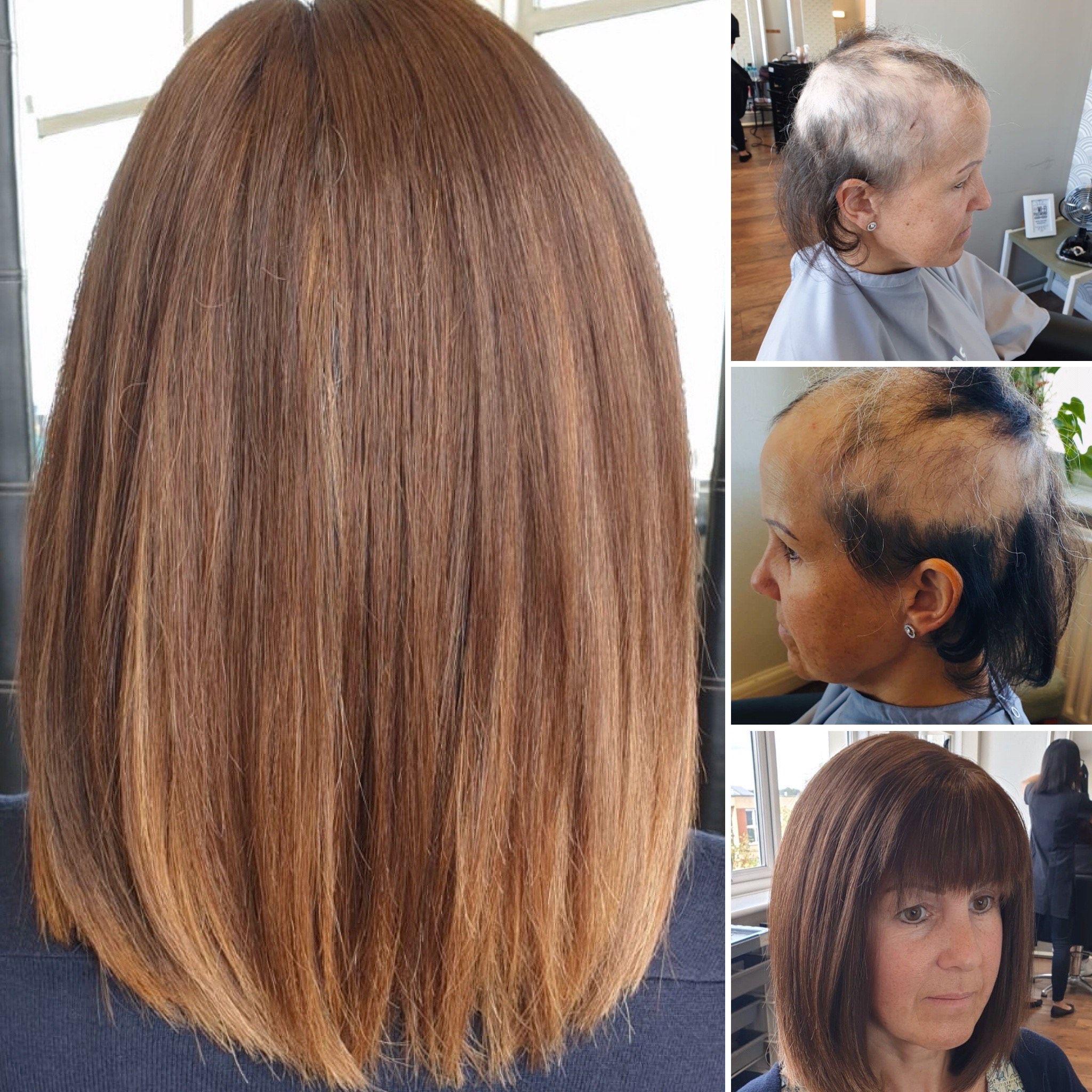 Hair Solved London Female Hair Loss Thinning Hair Specialists In 2020 Hair Loss Wigs Thinning Hair Loss Mens Hair Loss Treatment