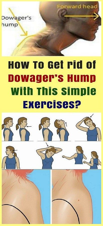 How To Get rid of Dowagers Hump With This Simple Exercises?