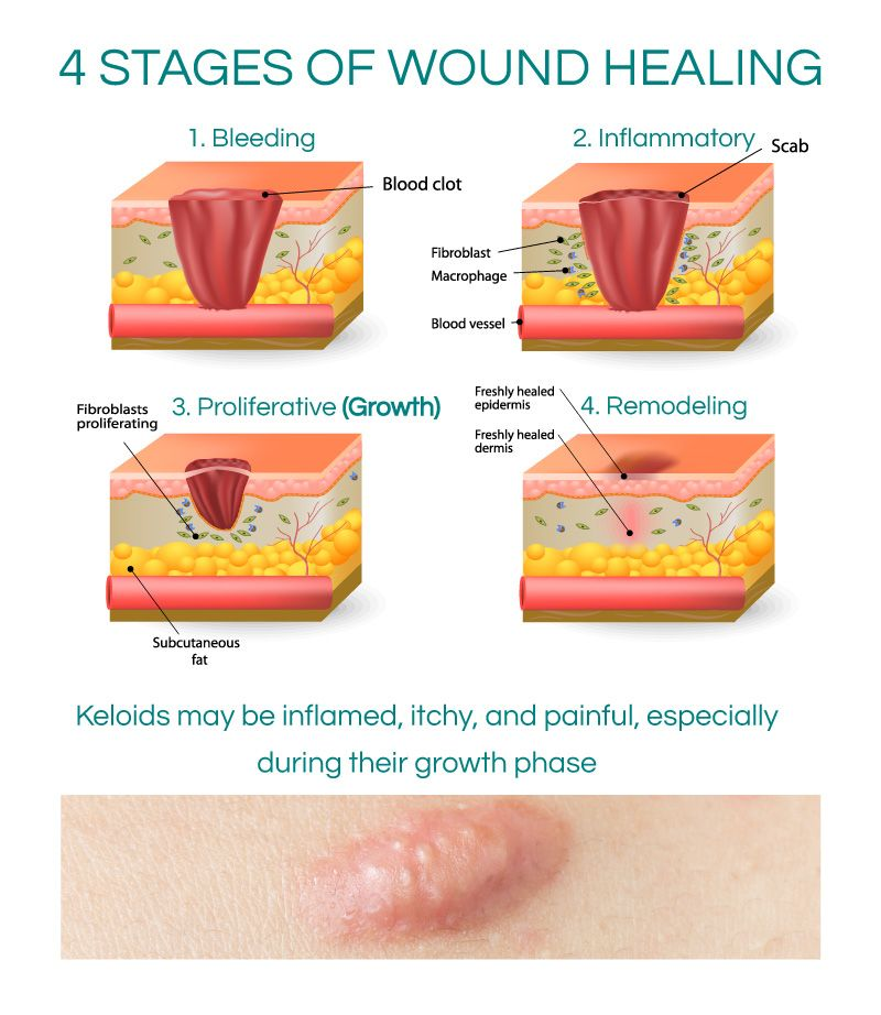 Pin On Wound Care