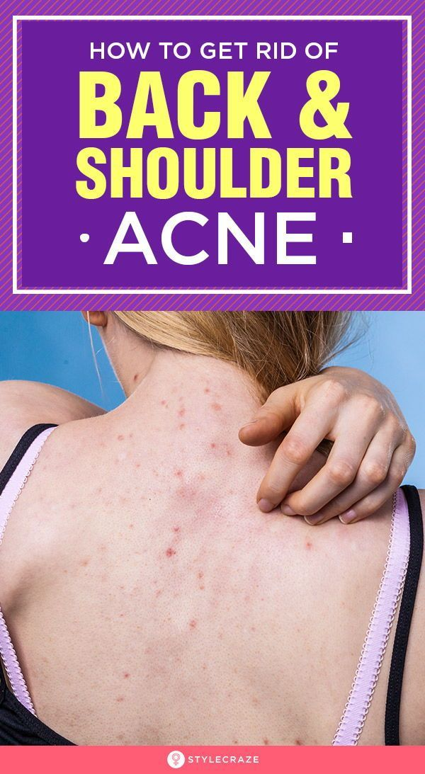 How To Get Rid Of Back Acne Naturally And Fast