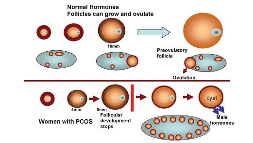 How To Get Pregnant With Polycystic Ovarian Syndrome