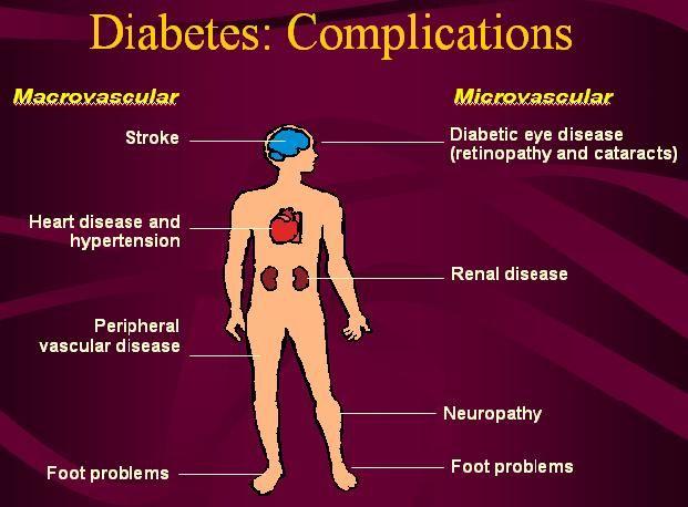 enfermedad microvascular diabetes tipo 2