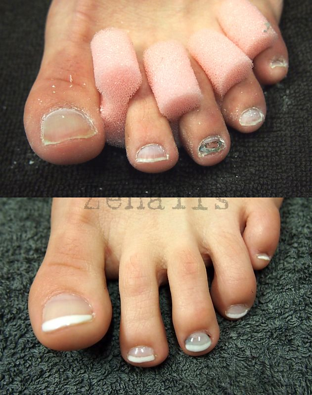 Lcn Wilde Pedique Before And After Kynsistudio Zenails