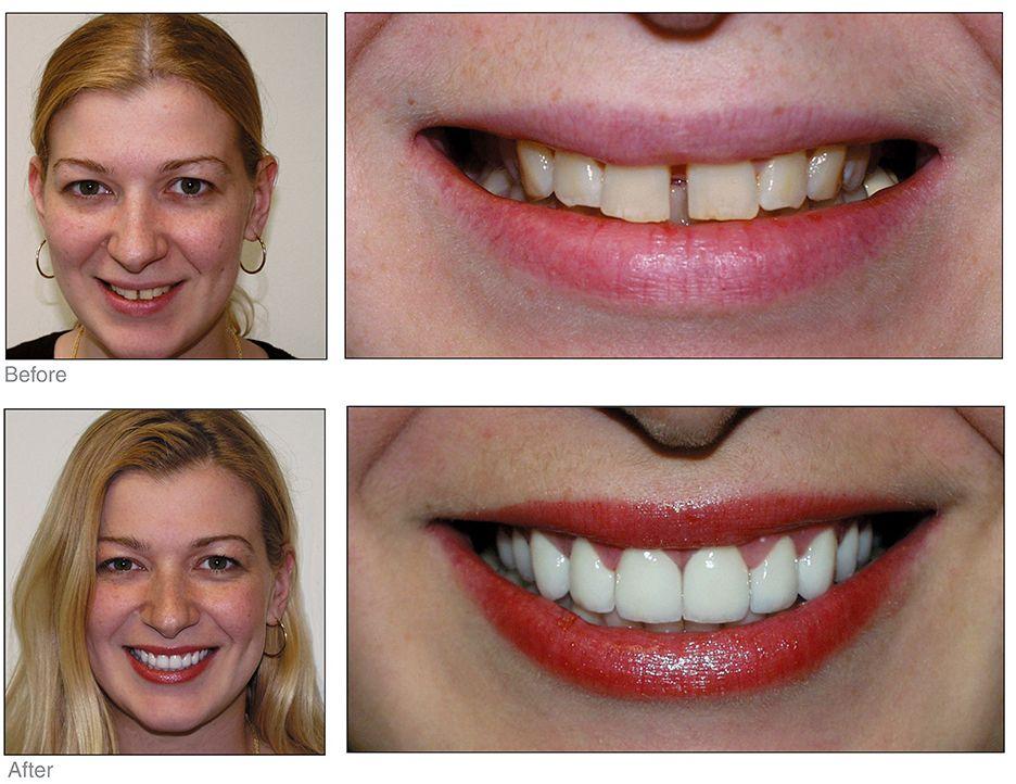 Pin on Teeth Repair