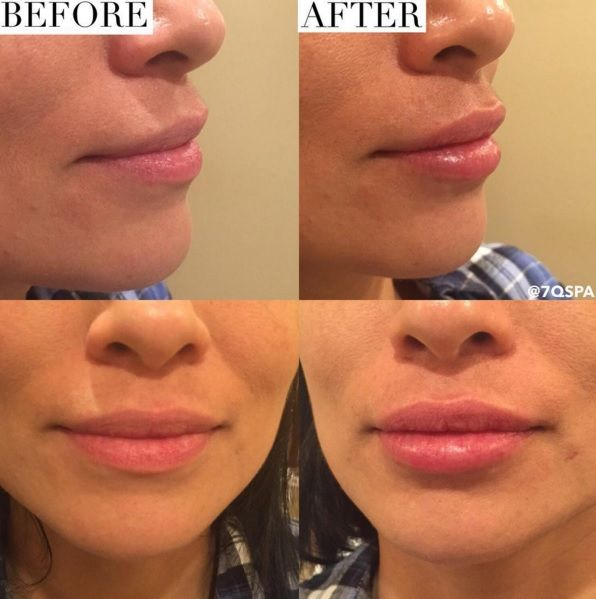 Before After Lip Fillers using Juvederm Ultra Plus XC  1/2 syringe