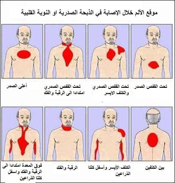 نواعم نت موقع الألم عند الإصابة في النوبة القلبية أو الذبحة الصدرية Nursing Care Cardiac Nursing Nursing Care Plan