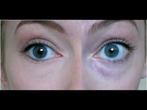... , CHEAP trick to hide dark blue under-eye circles! - YouTube More