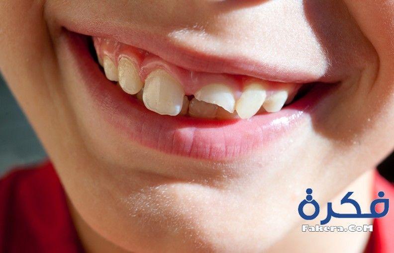تفسير حلم رؤية سقوط الاسنان بالتفصيل موقع فكرة Dental Implants Dental Teeth