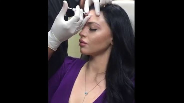 Dysport BrowLift, Nasal Tip Lift, & Smooth Forehead Lines, 11's, G before after forehead Botox Dysport BrowLift, Nasal Tip Lift, & Smooth Forehead Lines, 11's, G...        Botox Dysport BrowLift, Nasal Tip Lift, & Smooth Forehead Lines, 11's, G...before after forehead Botox Dysport BrowLift, Nasal Tip Lift, & Smooth Forehead Lines, 11's, G...        Botox Dysport BrowLift, Nasal Tip Lift,...