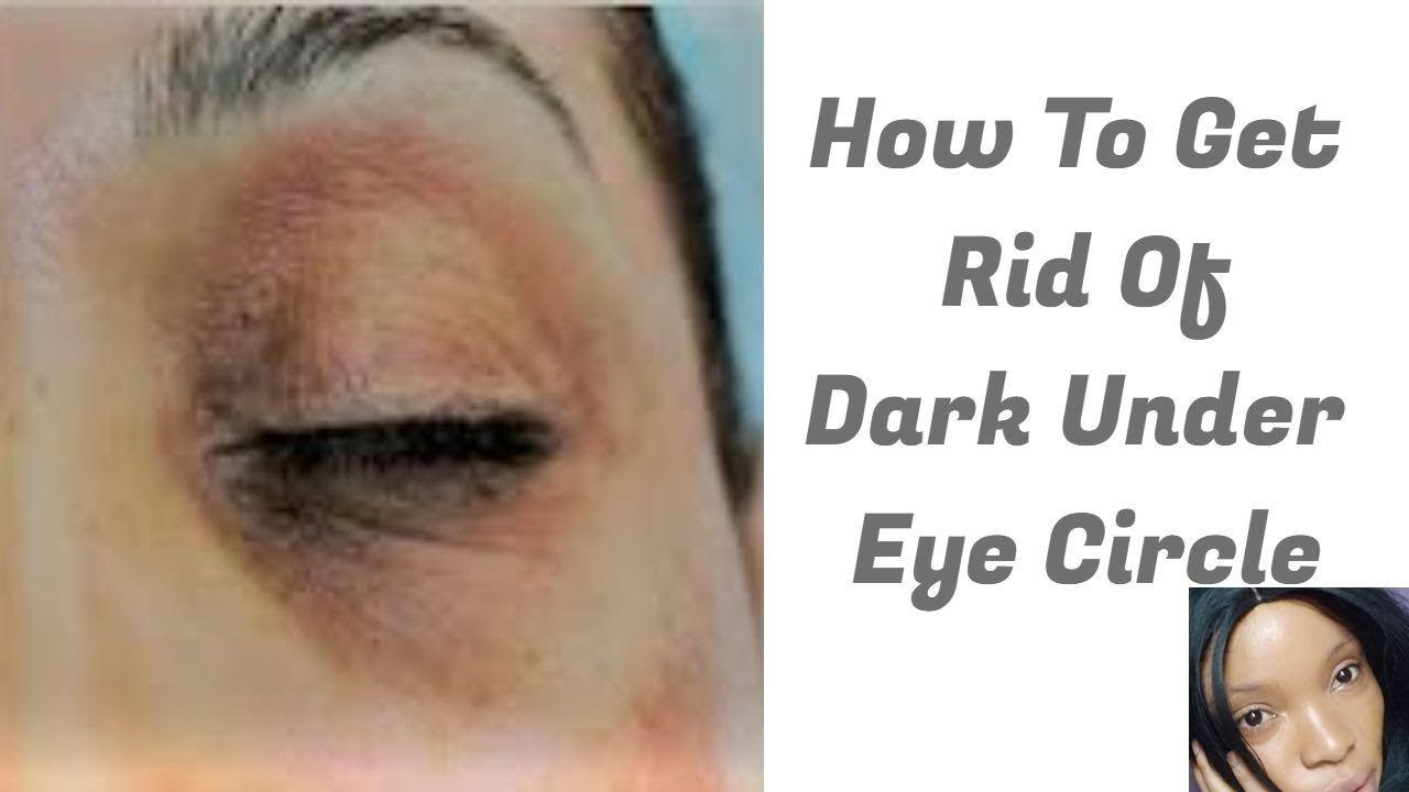How To Get Rid Of Under Eye Dark Eye Circle | Fade Off ...