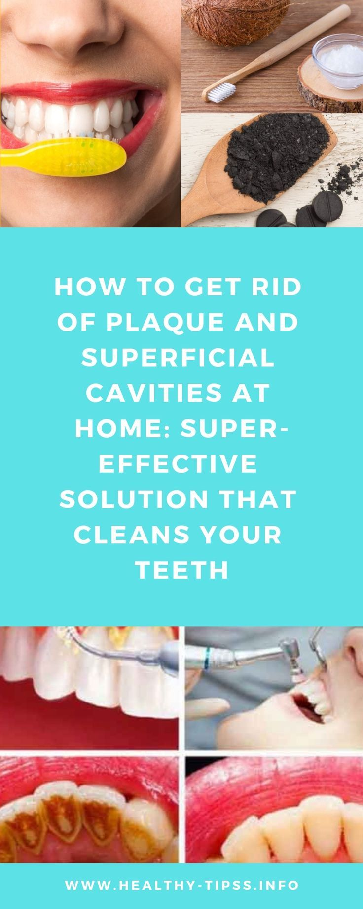 How to get rid of plaque and superficial cavities at home