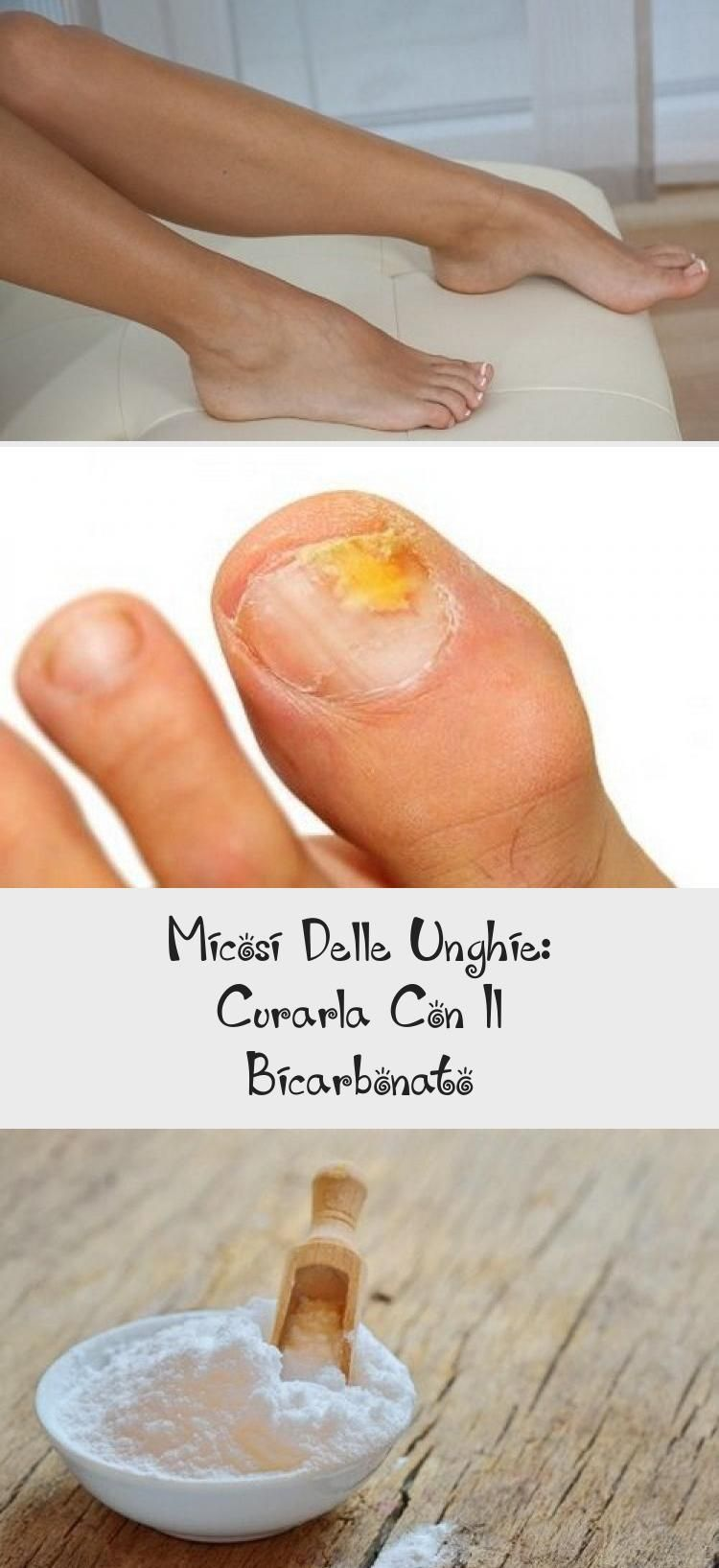 Nail Fungus: Treat It With Bicarbonate  Nail Desing  #bicarbonate #desing #fun
