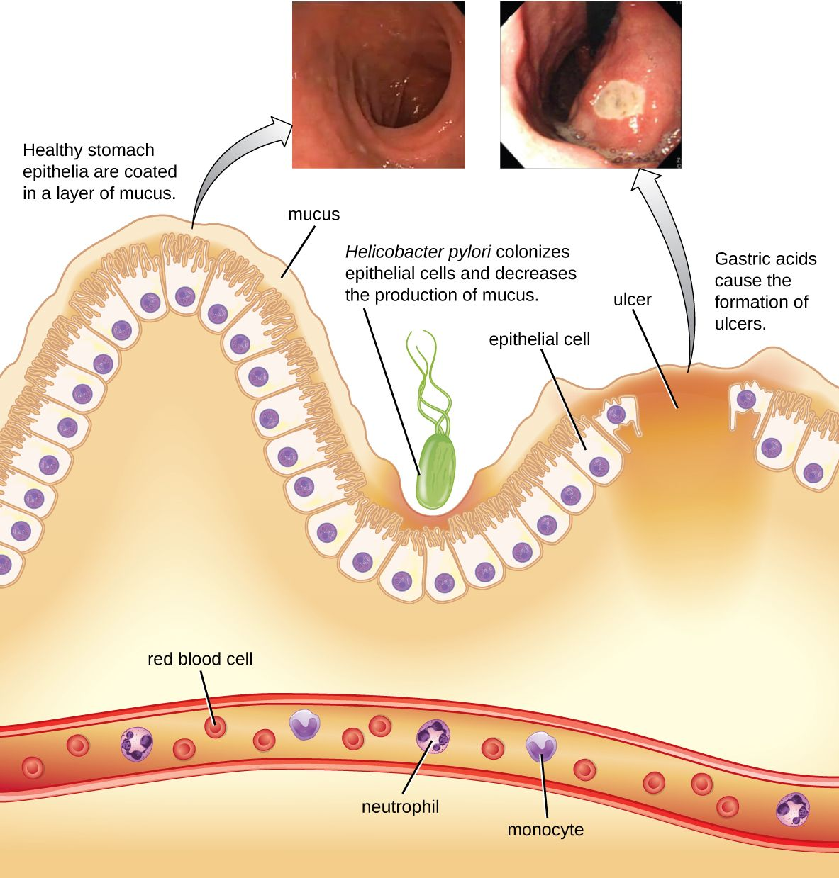 A Diagram Showing The Lining Of Stomach At Very Bottom Is Cell Blood Vessel With Red Cells Neutrophils And Monocytes