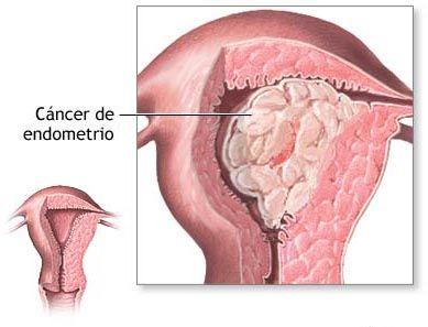 hiperplasia endometrial por embarazo
