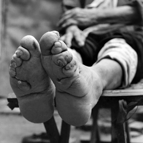 Pin By Diann Wallace On Chinese Foot Binding