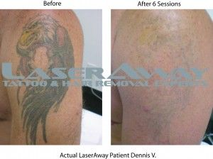 Laser Tattoo Removal Before After Laseraway Tattoo Removal Tattoo Removal Cost Laser Skin