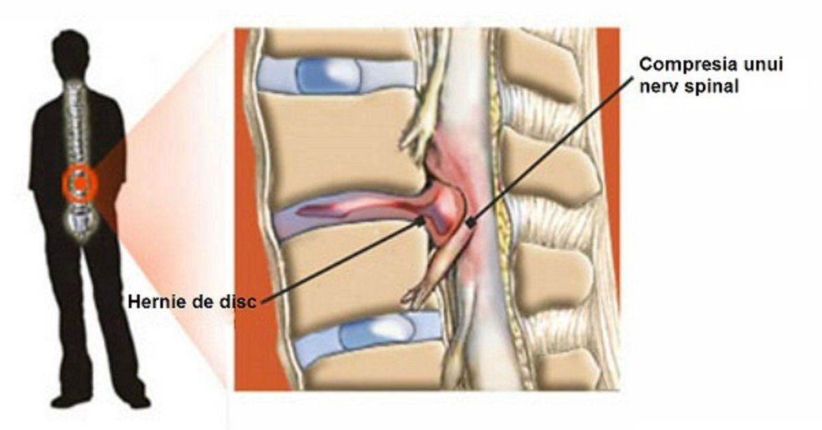 Hernie de disc - Simptome si tratament nedureros pentru hernie de disc in Cluj