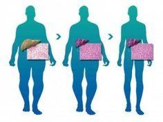 Garcinia cambogia diet in philippines